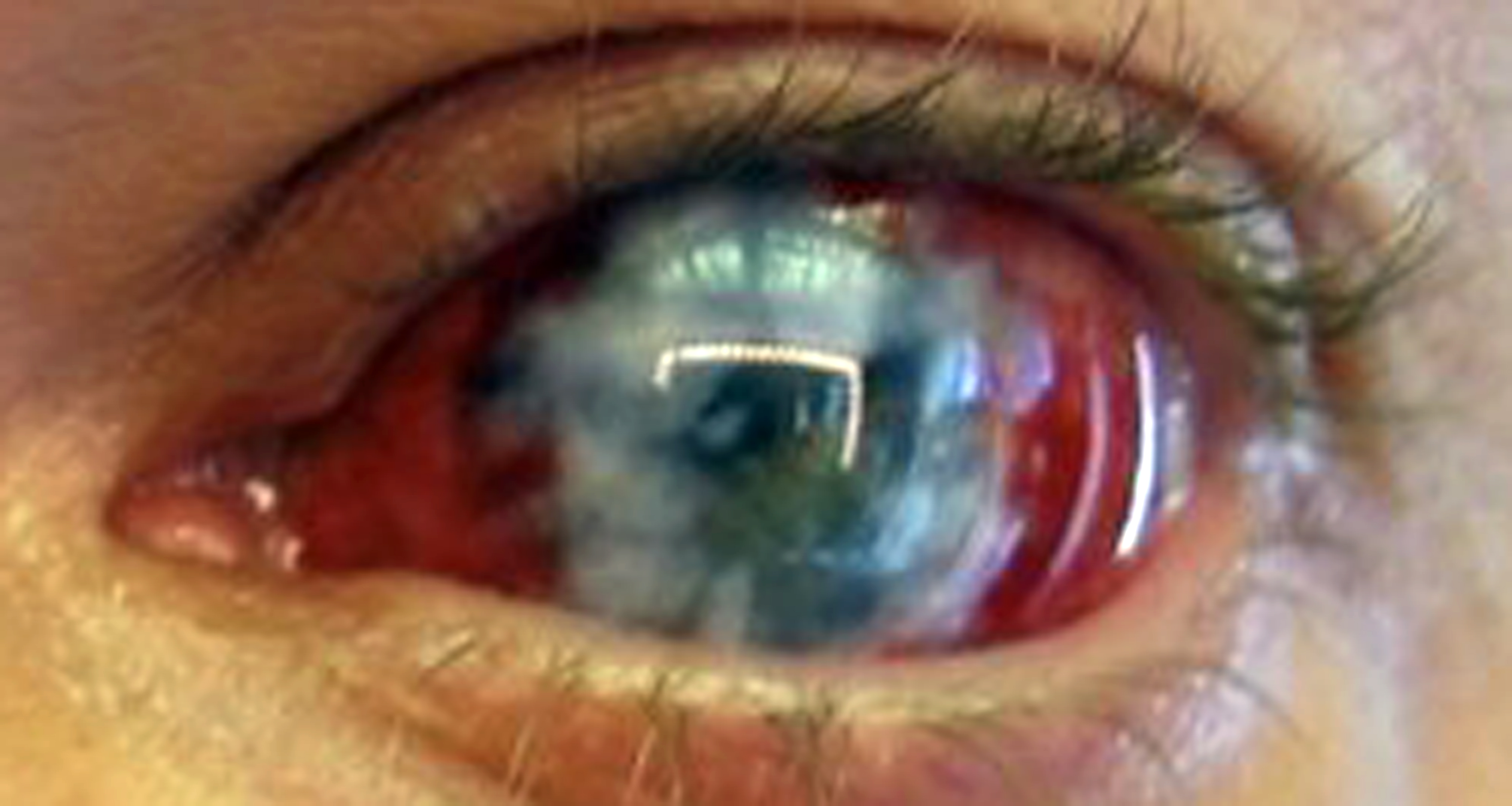 Black Sclera Red Iris Contacts blue sclera contacts -...